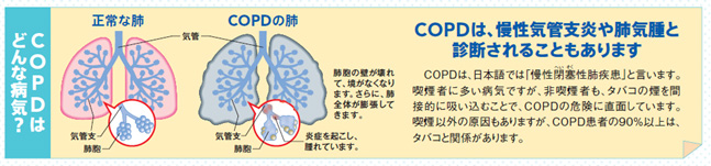 COPDはどんな病気?